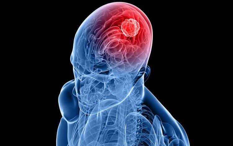 نسخه گیاهی مقابله با سکته مغزی